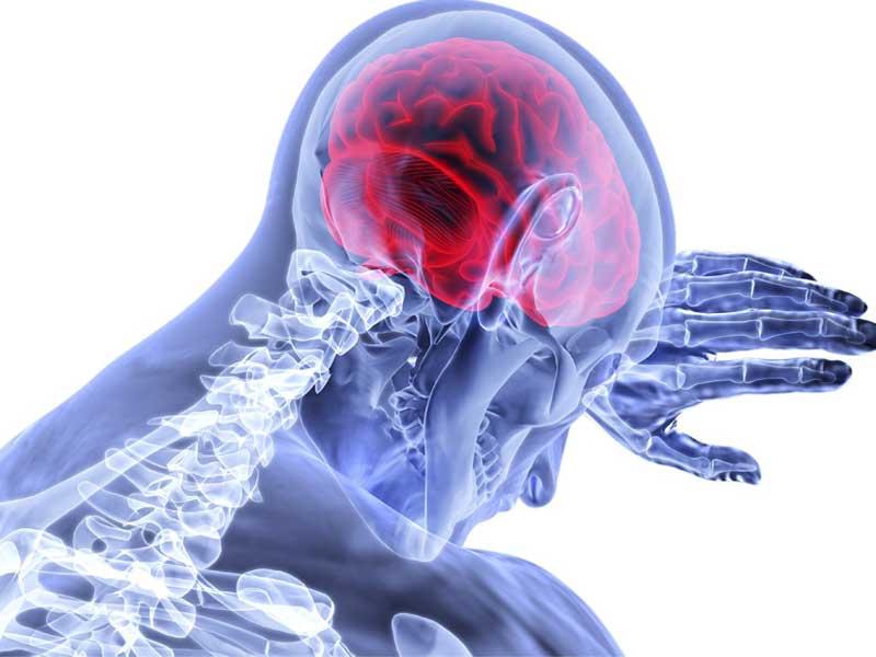 penyegahan stroke