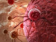 MSG dan Radiasi HP Picu Kanker? Ternyata Ini Faktanya