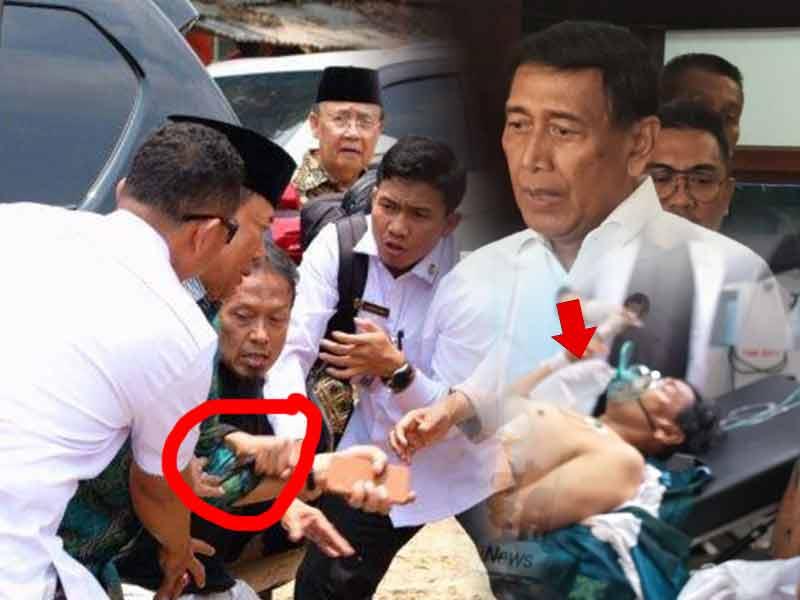 Jadi Korban Penusukan di Banten, Wiranto Dilarikan ke Rumah Sakit